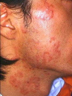 photo of tinea infection on the face